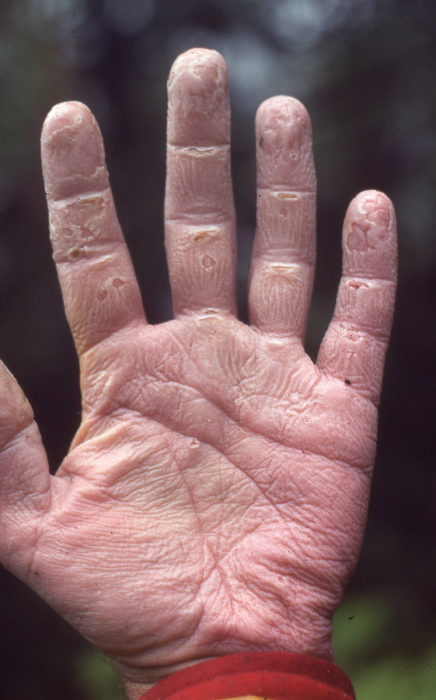 My hands showed the effects of spending 10 hours in the rain. My sense of touch was quite dulled, and in the evening I had to dry the skin over my camp stove before I could use my hands less clumsily.